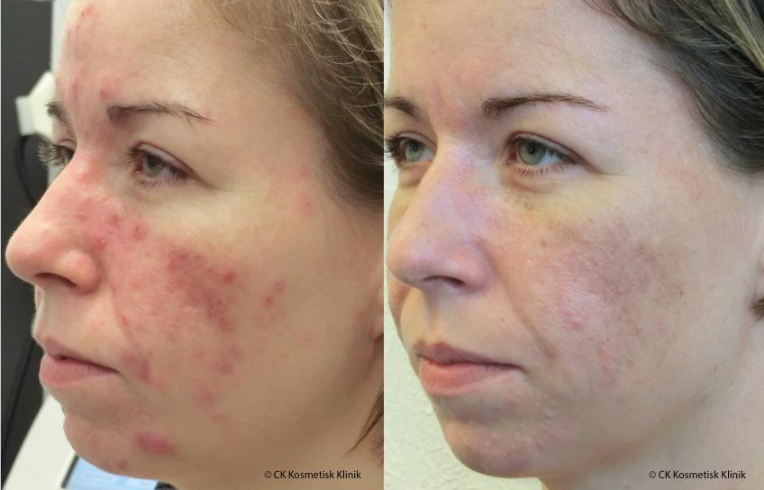 Anja har haft problemer med akne. Her ser i før og efter billeder efter behandling med Serum8 Dermaroller.